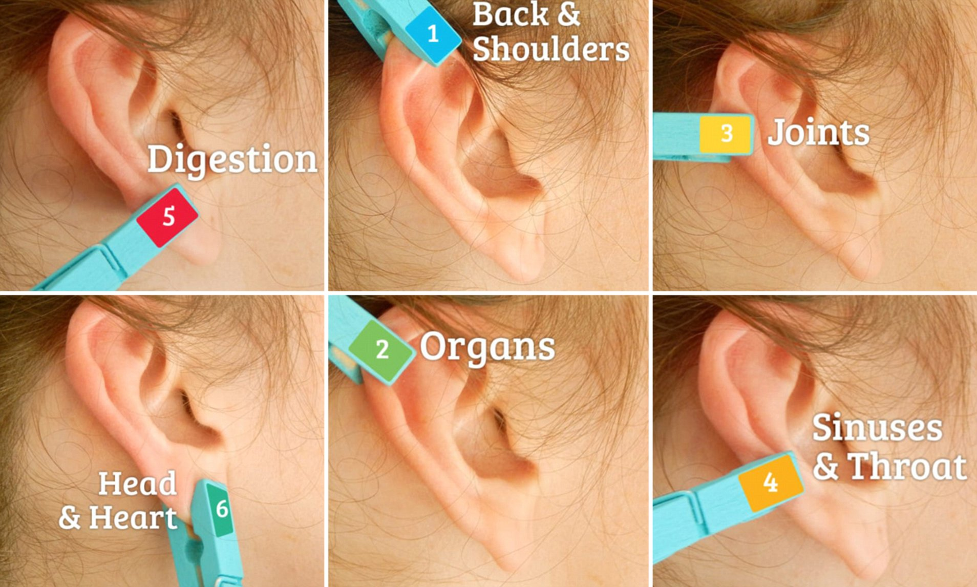 Pain Relief Clothespin On Your Ear